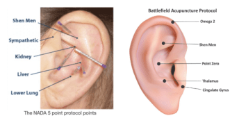nada ear acupuncture